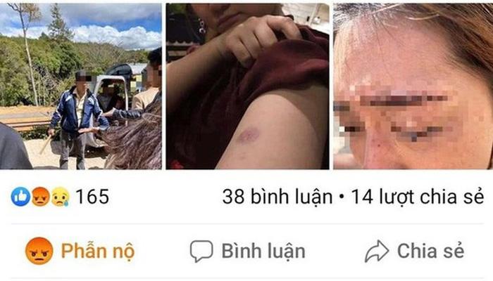 Du khách Thái Lan bị hành hung ở KDL Đường Hầm Điêu Khắc